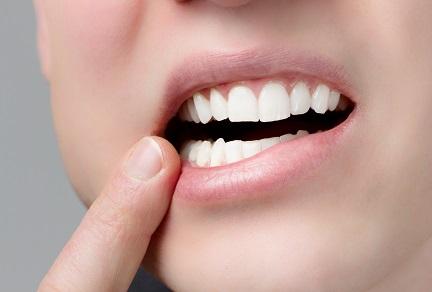 「歯茎 フリー画像」の画像検索結果