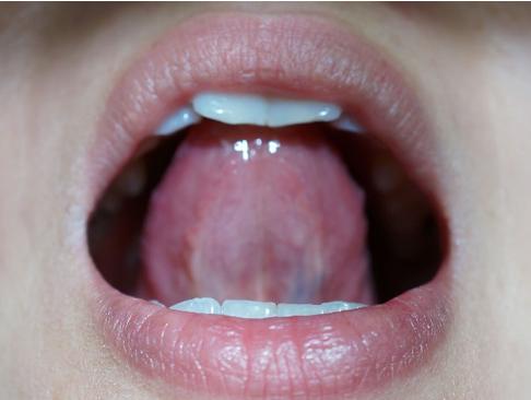 舌下腺って何?舌下腺にしこりがあるときに疑うべき6つの病気 ...