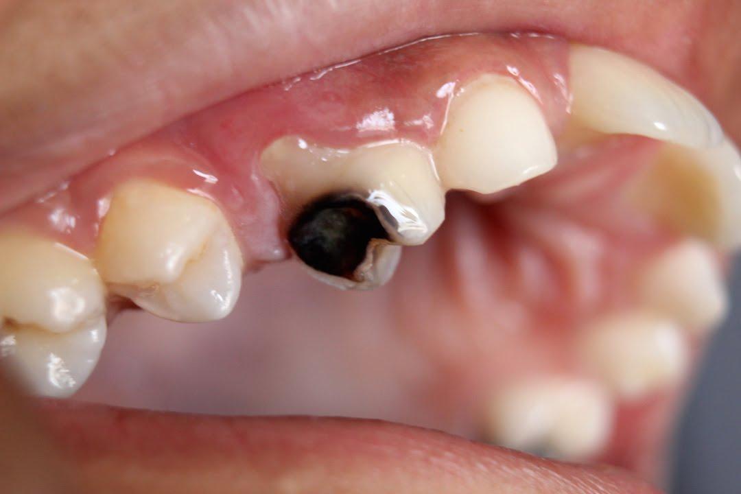 虫歯 の 匂い