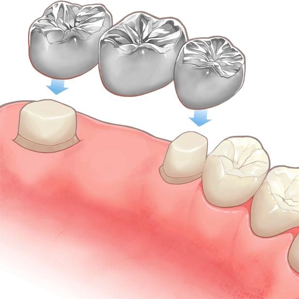 明日に欠ける歯。