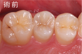 奥歯 臭い 対策